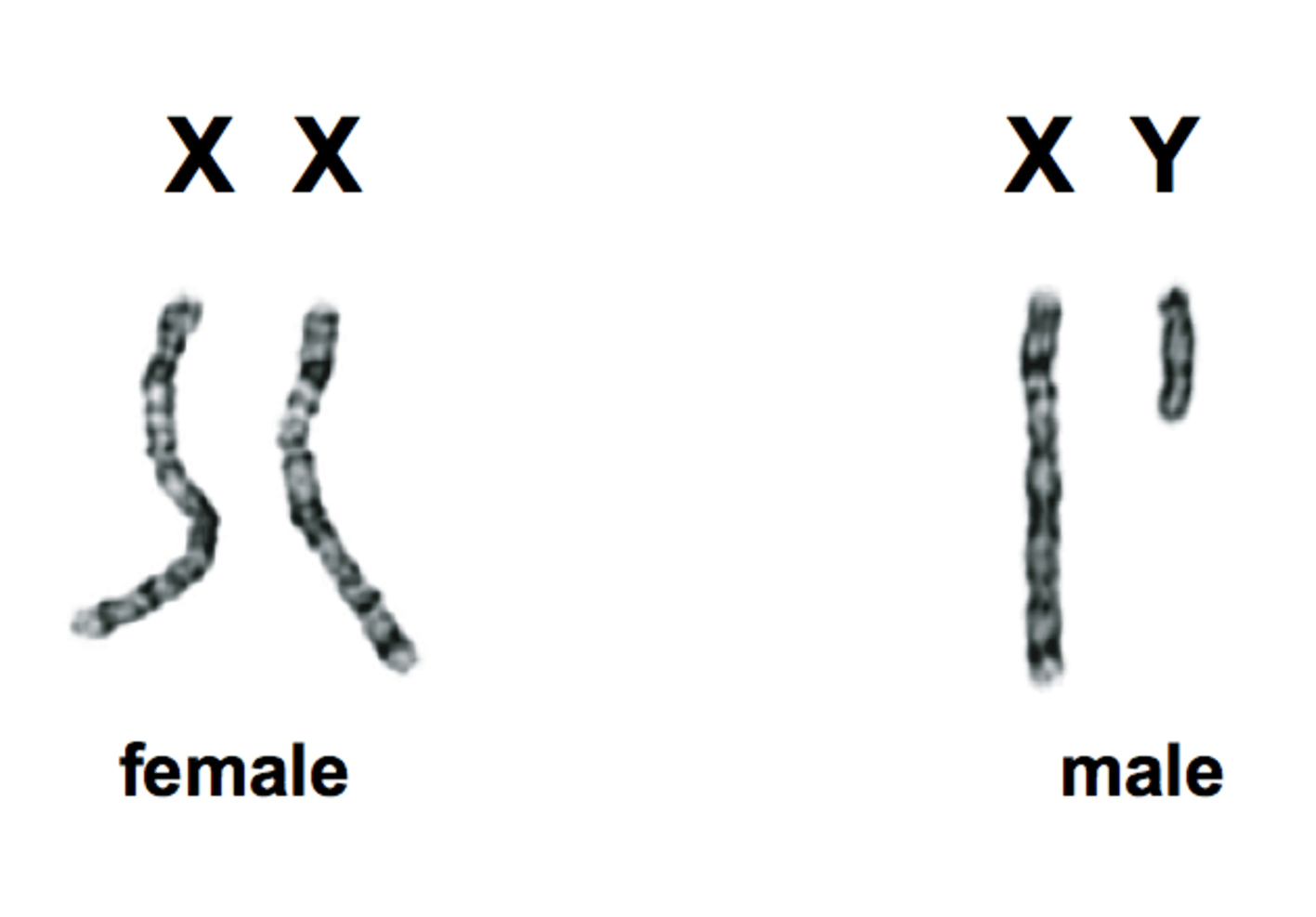 Chromosomes used by doctors to assign gender at birth.